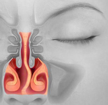 Септопластика – эффективное устранение всех проблем с носовой перегородкой